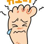 水虫の原因ってなに?|指の間の水虫は細菌の二次感染に注意しましょう!