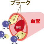 血栓症を予防する食べ物や飲み物とは?ドロドロ血液をサラサラにしましょう!